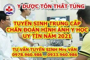 Tuyển sinh trung cấp Chẩn đoán hình ảnh năm 2021 uy tín tại Hà Nội.